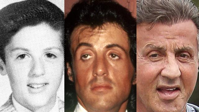 The evolution of Sylvester Stallone's face