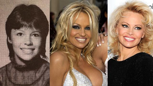 The evolution of Pamela Anderson's face