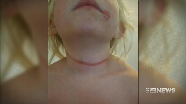 Girl 'lucky to be alive' after being strangled by school hat cord