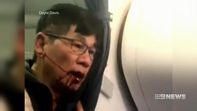 United Airlines spared from paying fine over passenger dragging incident