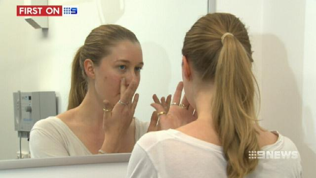 VIDEO: New acne treatment coming to Brisbane