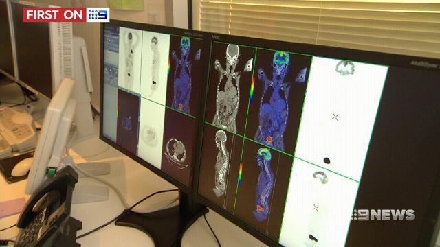 New type of radiotherapy trialled for liver cancer patients