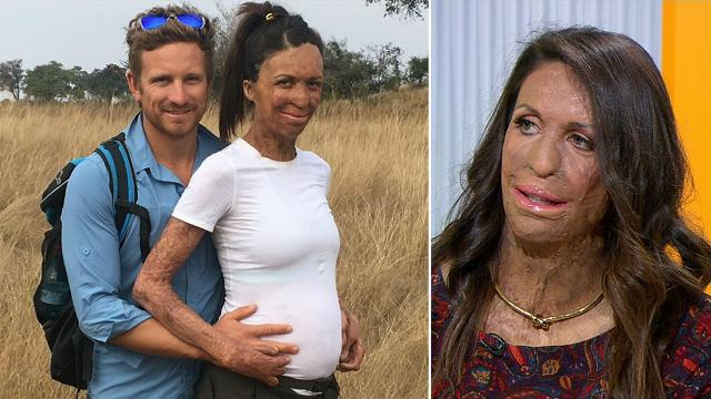 Turia Pitt: 'It's going to be an awesome day. It's the day I get to meet my son'